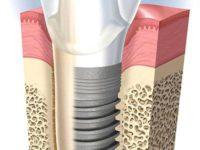 zobni implantati cena